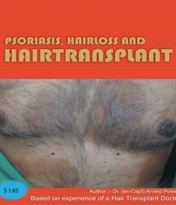PSORIASIS, HAIR LOSS AND HAIR TRANSPLANT