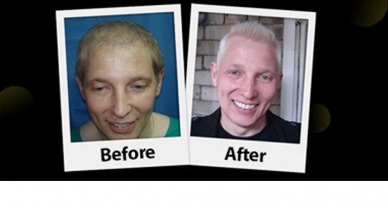 Repair Hair Transplant Photogallery