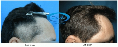 Sub Gallery Traction alopecia