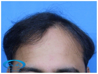 A beautiful hair transplant vandalized (picture 1)
