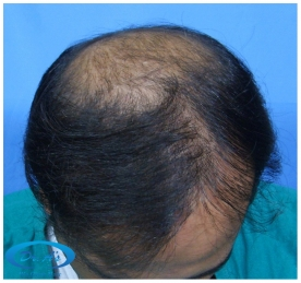 A beautiful hair transplant vandalized (picture 2)