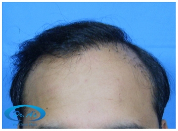 A beautiful hair transplant vandalized (picture 3)