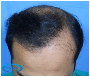 A beautiful hair transplant vandalized (picture 4)