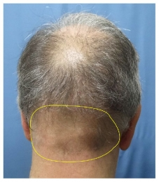 Depleted scalp donor area