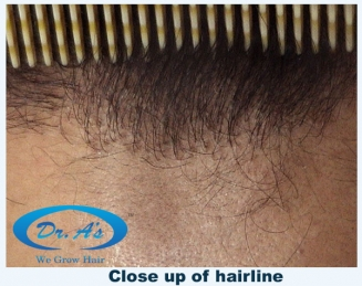 Hairline closeup